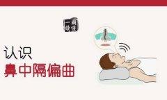 鼻中隔偏曲对人体有哪些危害