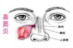 鼻窦炎会给患者带来哪些影响