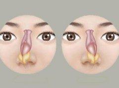 鼻中隔偏曲如何鉴别