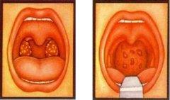 重庆最好的耳鼻喉医院_怎么预防腺样体肥大