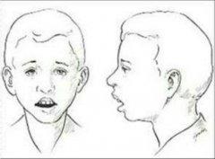 重庆耳鼻喉医院_鼻甲肥大会出现哪些症状
