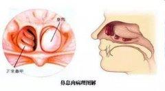 重庆耳鼻喉医院_鼻息肉的危害有哪些