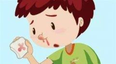 重庆耳鼻喉医院推荐_鼻中隔偏曲常见的原因有哪些