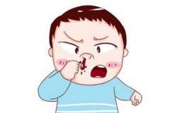 重庆耳鼻喉医院推荐_引发鼻甲肥大的原因有哪些