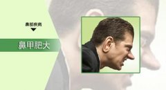 重庆最好的耳鼻喉医院_鼻甲肥大会产生哪些症状?
