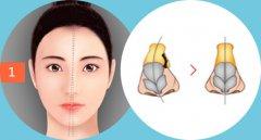 重庆耳鼻喉医院哪家好_鼻中隔偏曲术后多久能完全恢复