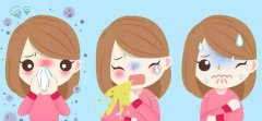 重庆治疗鼻炎最好的医院_急性鼻炎的症状有哪些?