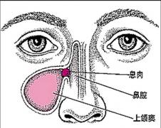 鼻息肉是怎么形成的