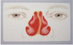 重庆鼻中隔偏曲怎么诊断